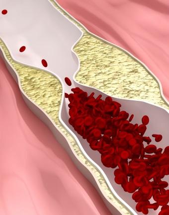 Липидный обмен и холестерин