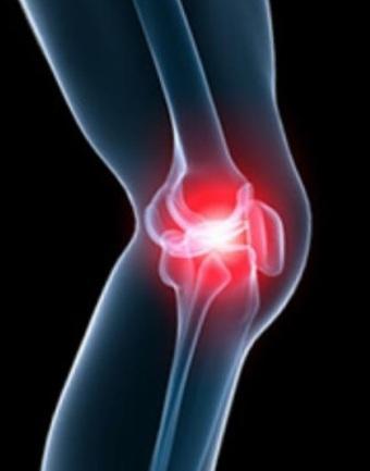 Заболевания суставов: артриты и артрозы