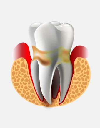 Периодонтит и его лечение аппаратом Спинор