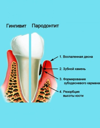 Лечение гингивита и пародонтита аппаратом Спинор