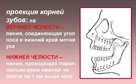 проекция верхушки корня зуба