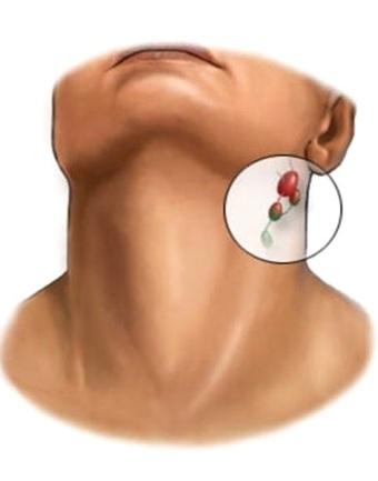 Острый лимфаденит и его лечение аппаратом Спинор