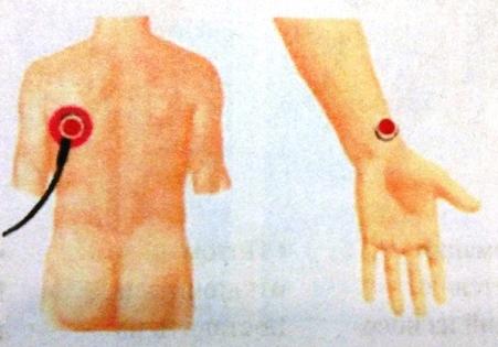 клещевые инфекции