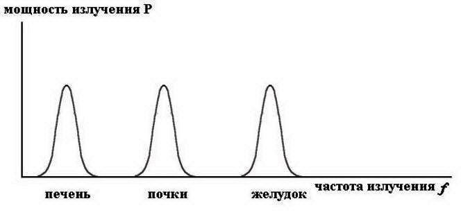 Схематичная спектральная характеристика излучения органов